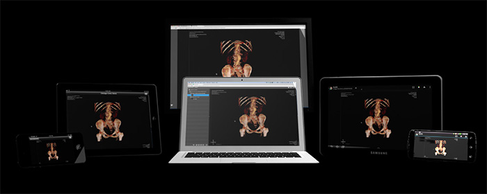 The collaborative capabilities in ResolutionMD allow multiple physicians to join the same imaging session.