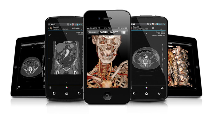 Radiologists and referring physicians can use their own mobile devices to access a Quadro-powered ResolutionMD server to view medical images
